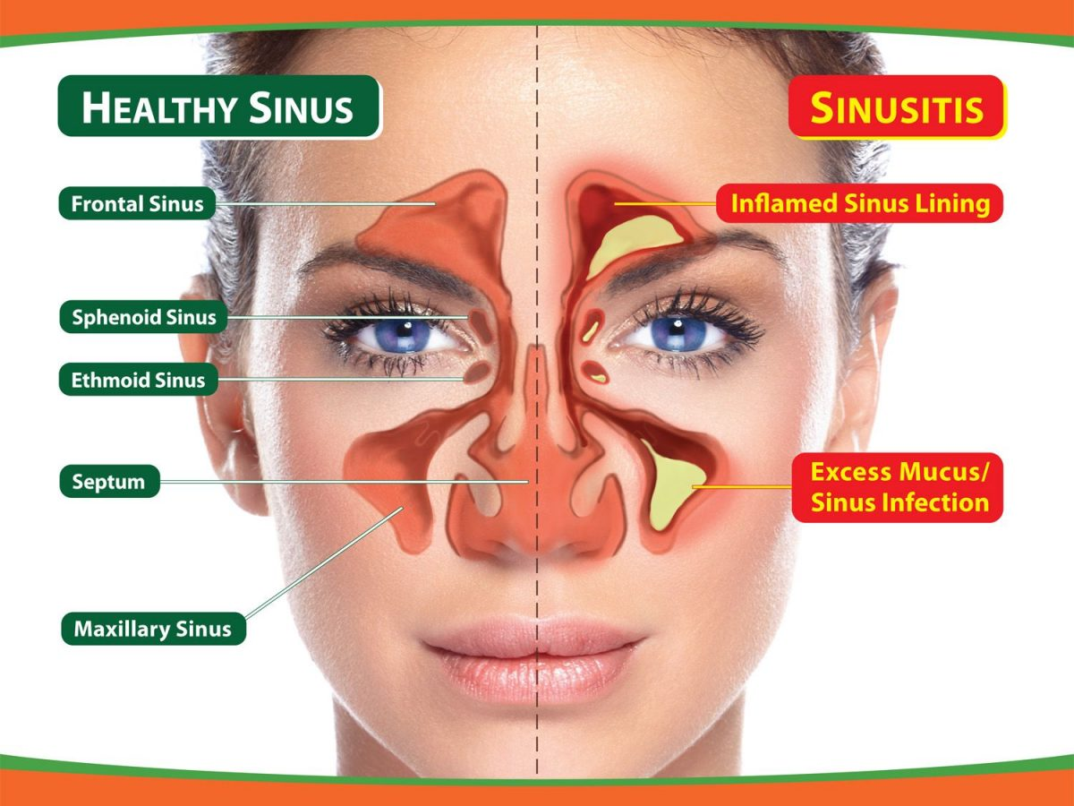 Sinusitis Treatment Online